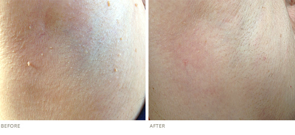 skin tag removal example