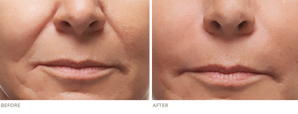 RADIESSE1 - Botox in Frederick, MD